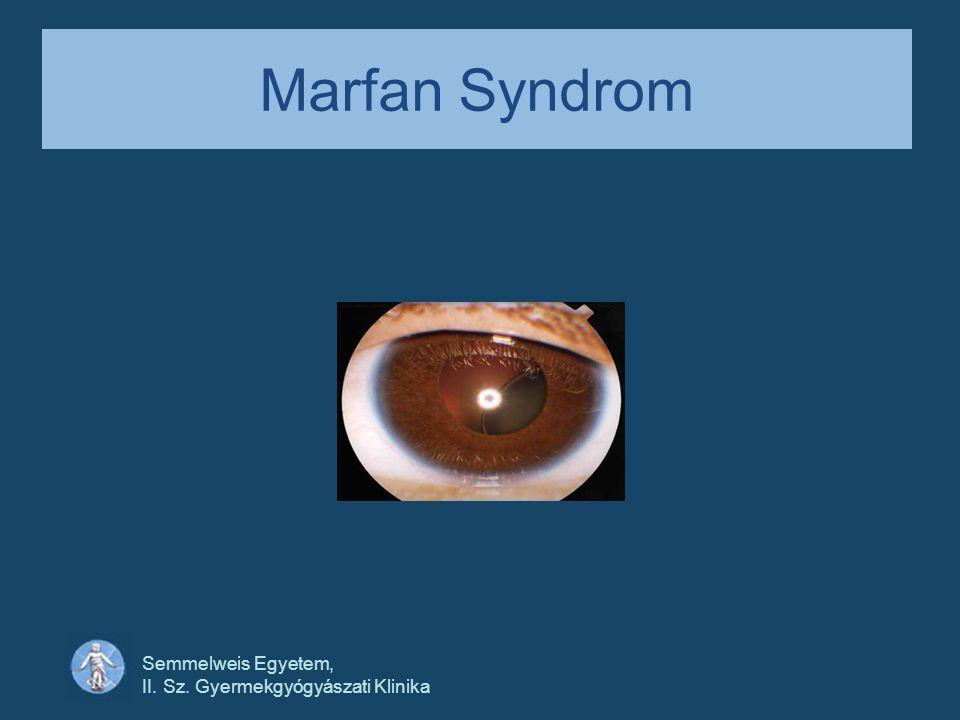 Semmelweis Egyetem, II. Sz. Gyermekgyógyászati Klinika Marfan Syndrom