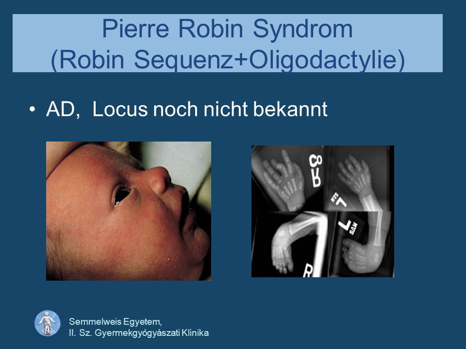Semmelweis Egyetem, II. Sz. Gyermekgyógyászati Klinika Pierre Robin Syndrom (Robin Sequenz+Oligodactylie) AD, Locus noch nicht bekannt