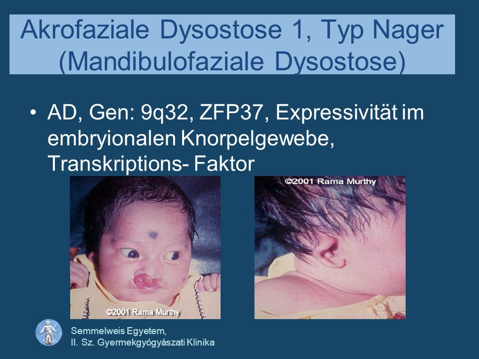 Semmelweis Egyetem, II. Sz. Gyermekgyógyászati Klinika Akrofaziale Dysostose 1, Typ Nager (Mandibulofaziale Dysostose) AD, Gen: 9q32, ZFP37, Expressiv