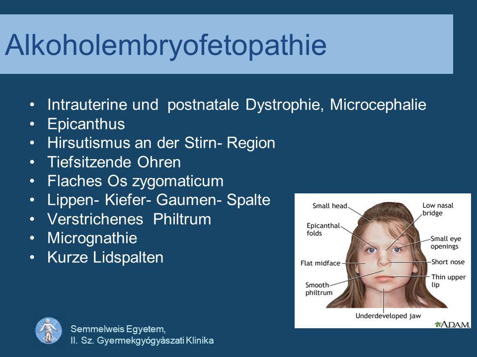 Semmelweis Egyetem, II. Sz. Gyermekgyógyászati Klinika Alkoholembryofetopathie Intrauterine und postnatale Dystrophie, Microcephalie Epicanthus Hirsut