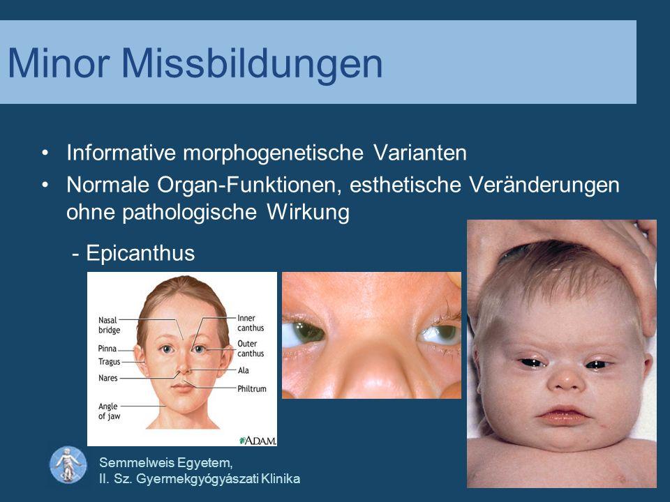 Semmelweis Egyetem, II. Sz. Gyermekgyógyászati Klinika Minor Missbildungen Informative morphogenetische Varianten Normale Organ-Funktionen, esthetisch