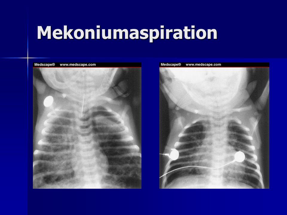 Mekoniumaspiration