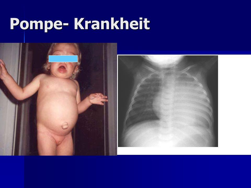 Pompe- Krankheit