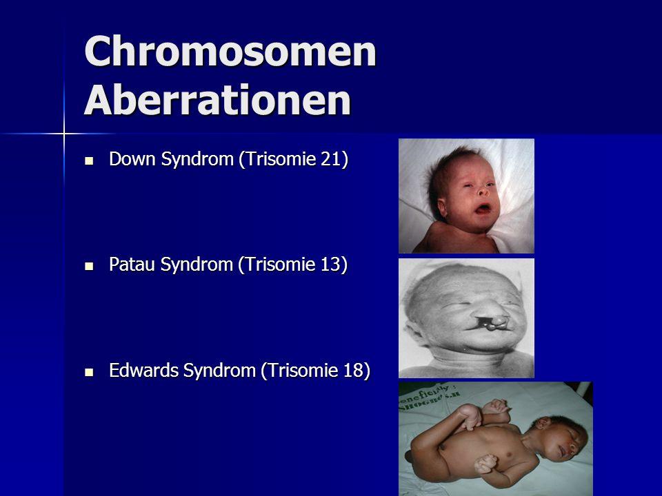 Chromosomen Aberrationen Down Syndrom (Trisomie 21) Down Syndrom (Trisomie 21) Patau Syndrom (Trisomie 13) Patau Syndrom (Trisomie 13) Edwards Syndrom (Trisomie 18) Edwards Syndrom (Trisomie 18)