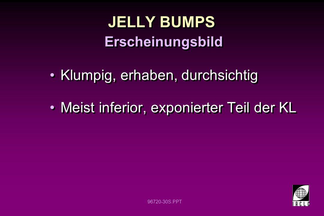 96720-30S.PPT JELLY BUMPS Klumpig, erhaben, durchsichtig Meist inferior, exponierter Teil der KL Klumpig, erhaben, durchsichtig Meist inferior, exponierter Teil der KL Erscheinungsbild