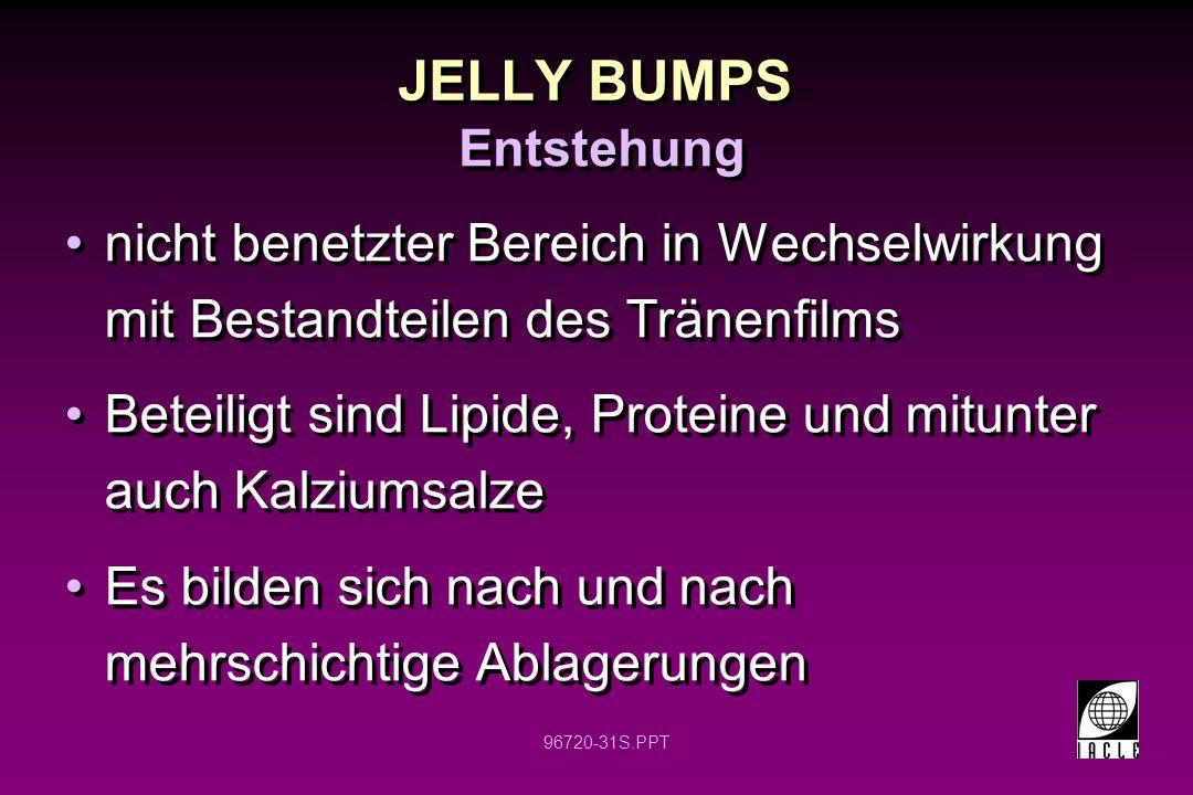 96720-31S.PPT JELLY BUMPS nicht benetzter Bereich in Wechselwirkung mit Bestandteilen des Tränenfilms Beteiligt sind Lipide, Proteine und mitunter auch Kalziumsalze Es bilden sich nach und nach mehrschichtige Ablagerungen nicht benetzter Bereich in Wechselwirkung mit Bestandteilen des Tränenfilms Beteiligt sind Lipide, Proteine und mitunter auch Kalziumsalze Es bilden sich nach und nach mehrschichtige Ablagerungen Entstehung