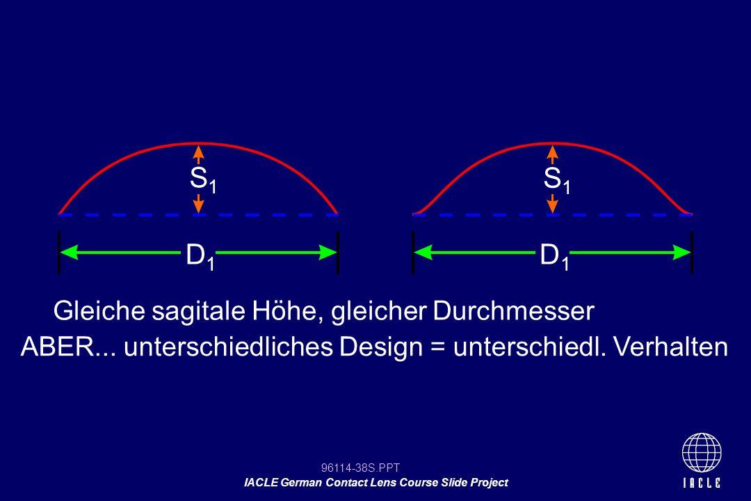 96114-38S.PPT IACLE German Contact Lens Course Slide Project Gleiche sagitale Höhe, gleicher Durchmesser ABER... unterschiedliches Design = unterschie