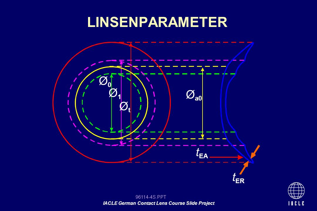 96114-5S.PPT IACLE German Contact Lens Course Slide Project Geometrische Mittendicke (t c ) Linsendurchmesser (Gesamtdurchmesser, GD,Ø G ) Basiskurve (r 0 ) Rückflächengestalltung Radius der zentralen Vorderfläche (r a0 ) Vorderflächengestaltung DESIGN-FAKTOREN BEI WEICHEN KL