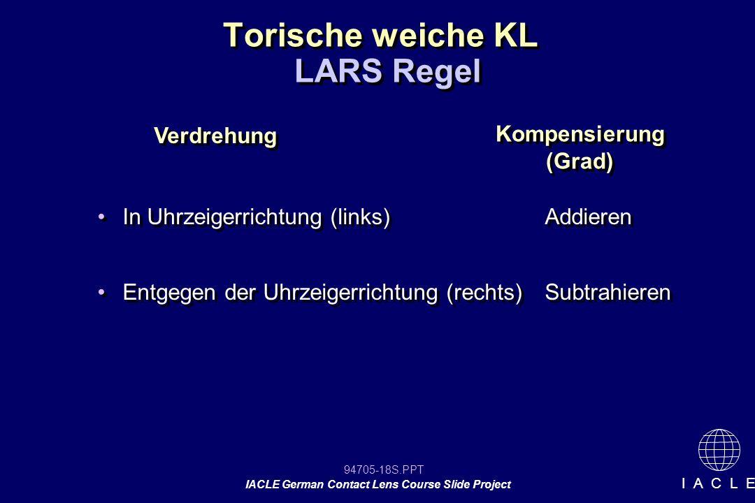 94705-18S.PPT IACLE German Contact Lens Course Slide Project I A C L E Torische weiche KL In Uhrzeigerrichtung (links)Addieren Entgegen der Uhrzeigerr