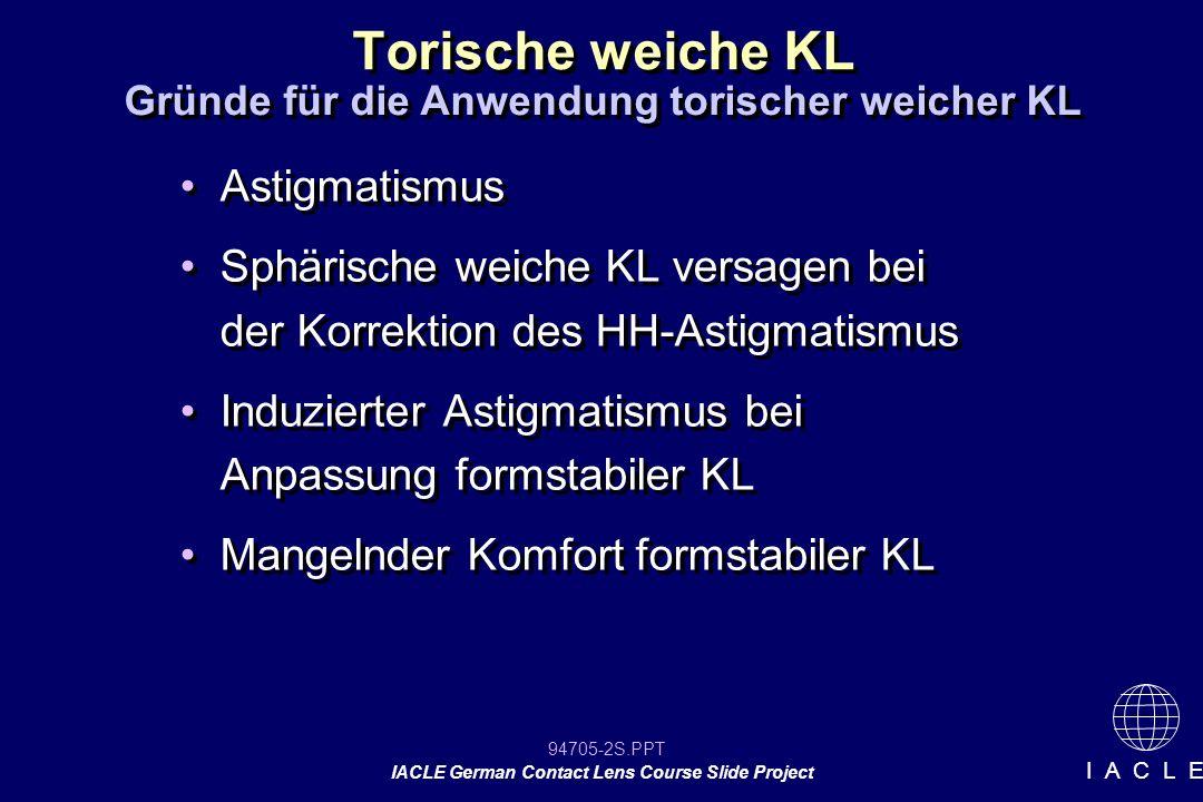 94705-13S.PPT IACLE German Contact Lens Course Slide Project I A C L E Torische weiche KL Meistens circa 5° nasal aufwärts Ausnahmen immer möglich Rotation der KL wird durch die Anpassung an die HH und durch die Lidstellung beeinflusst Zentrierung wird durch das Dickenprofil der KL beeinflusst Meistens circa 5° nasal aufwärts Ausnahmen immer möglich Rotation der KL wird durch die Anpassung an die HH und durch die Lidstellung beeinflusst Zentrierung wird durch das Dickenprofil der KL beeinflusst Betrachtung der KL Rotation