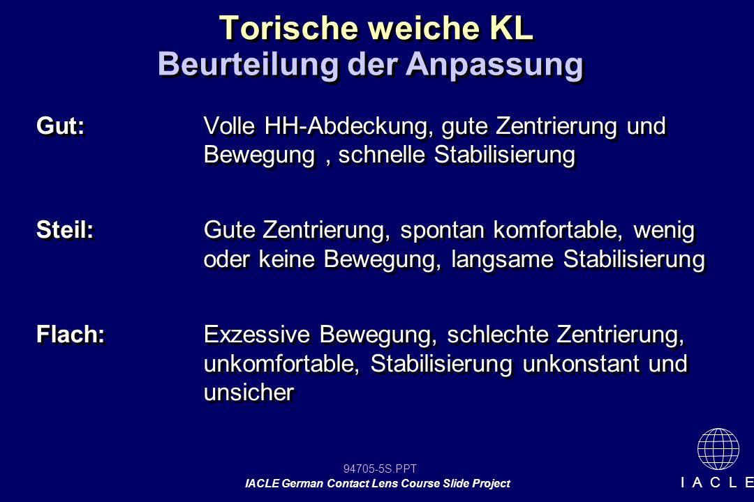 94705-26S.PPT IACLE German Contact Lens Course Slide Project I A C L E Vorgehensweise bei Problemen 1.Vorhanden Daten/ Karteikarte vorlegen 2.Bestimmung der Sehschärfe 3.Sphärische Überrafraktion mit Sehschärfe 4.Sphäro-zylindrische ÜR mit Sehschärfe 5.Dynamische Stabilisierungsachse bestimmen 6.DSA prüfen (leicht verdrehen und erneuter Check) 1.Vorhanden Daten/ Karteikarte vorlegen 2.Bestimmung der Sehschärfe 3.Sphärische Überrafraktion mit Sehschärfe 4.Sphäro-zylindrische ÜR mit Sehschärfe 5.Dynamische Stabilisierungsachse bestimmen 6.DSA prüfen (leicht verdrehen und erneuter Check)