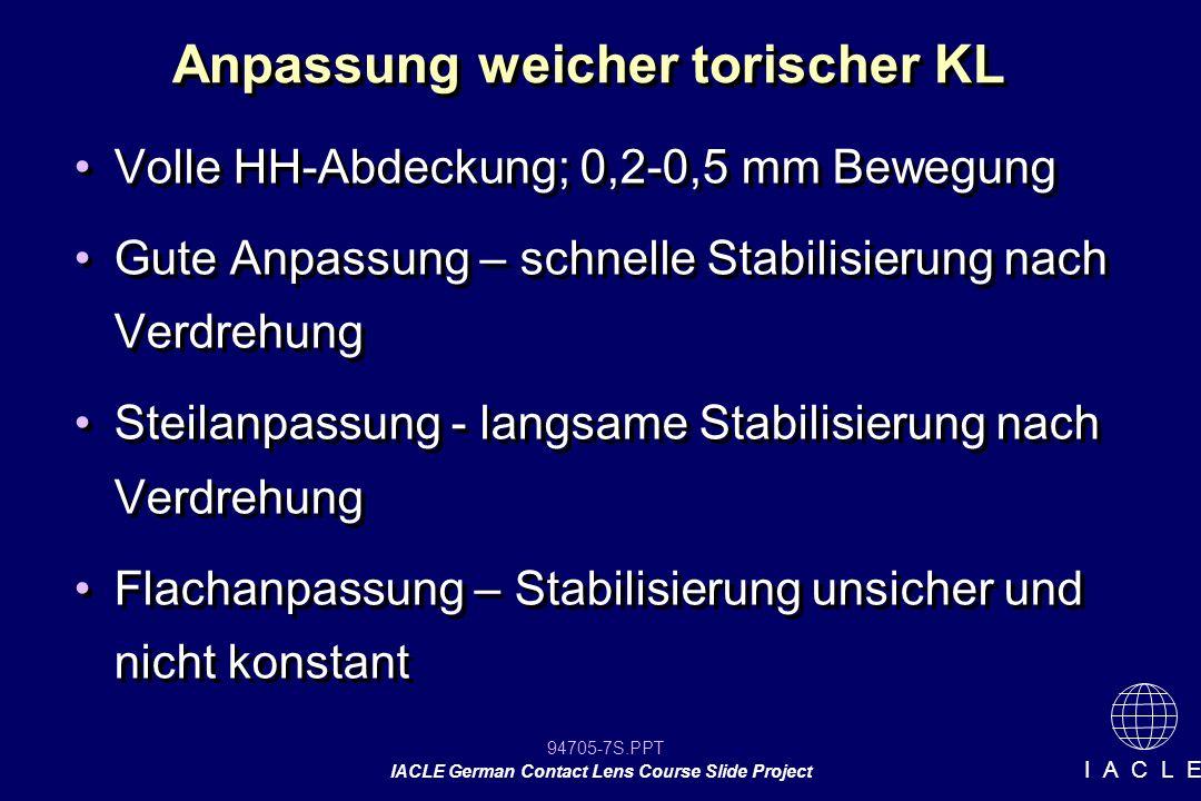 94705-8S.PPT IACLE German Contact Lens Course Slide Project I A C L E Torische weiche KL Referenzmarkierungen auf der KL bei 3 und 9 Uhr oder 6 Uhr Markierungen nur zur Orientierung Messung: -schmaler Spalt an der Spaltlampe -Zylinderglas und Messbrille -Messokular Abschätzung der Stabilisierungsachse Referenzmarkierungen auf der KL bei 3 und 9 Uhr oder 6 Uhr Markierungen nur zur Orientierung Messung: -schmaler Spalt an der Spaltlampe -Zylinderglas und Messbrille -Messokular Abschätzung der Stabilisierungsachse Ermittlung der Verdrehung