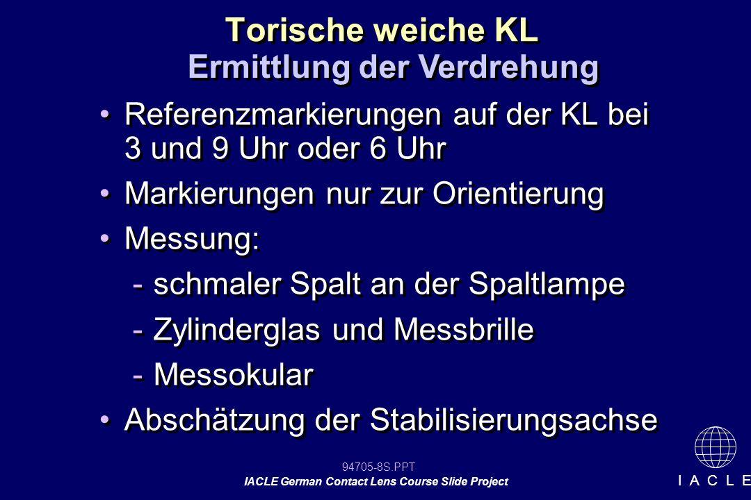 94705-8S.PPT IACLE German Contact Lens Course Slide Project I A C L E Torische weiche KL Referenzmarkierungen auf der KL bei 3 und 9 Uhr oder 6 Uhr Ma