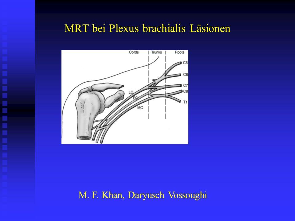 MRT bei Plexus brachialis Läsionen M. F. Khan, Daryusch Vossoughi