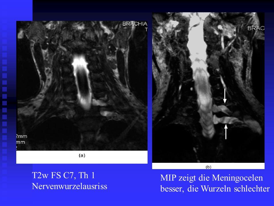 T2w FS C7, Th 1 Nervenwurzelausriss MIP zeigt die Meningocelen besser, die Wurzeln schlechter