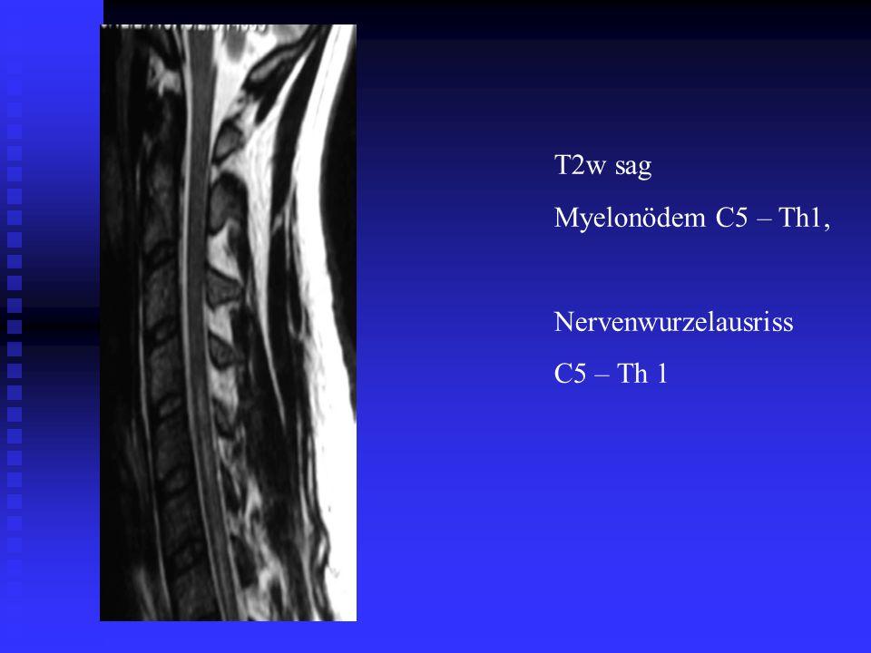 T2w sag Myelonödem C5 – Th1, Nervenwurzelausriss C5 – Th 1