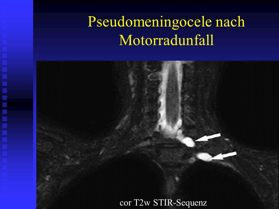 Pseudomeningocele nach Motorradunfall cor T2w STIR-Sequenz