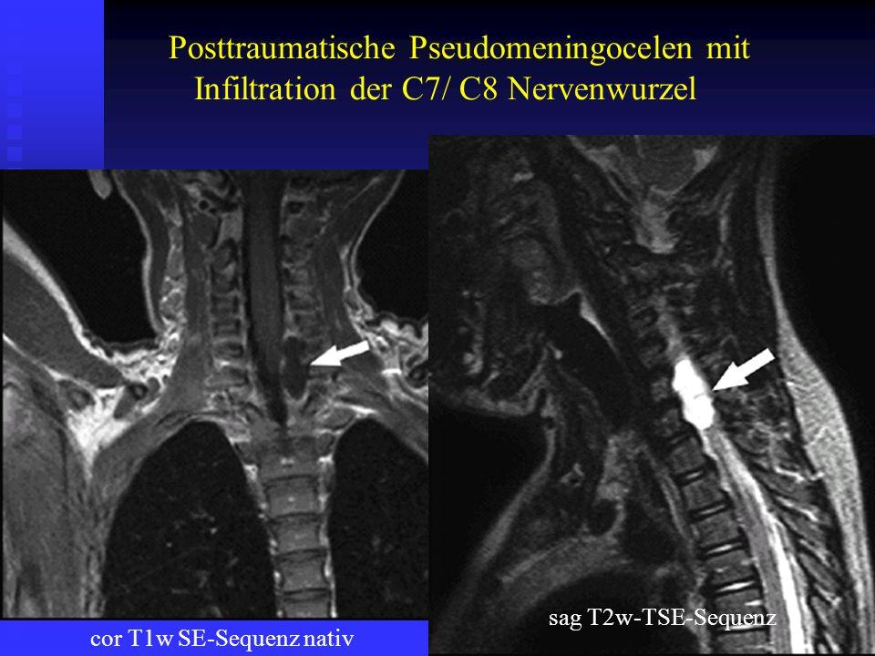 Posttraumatische Pseudomeningocelen mit Infiltration der C7/ C8 Nervenwurzel cor T1w SE-Sequenz nativ sag T2w-TSE-Sequenz