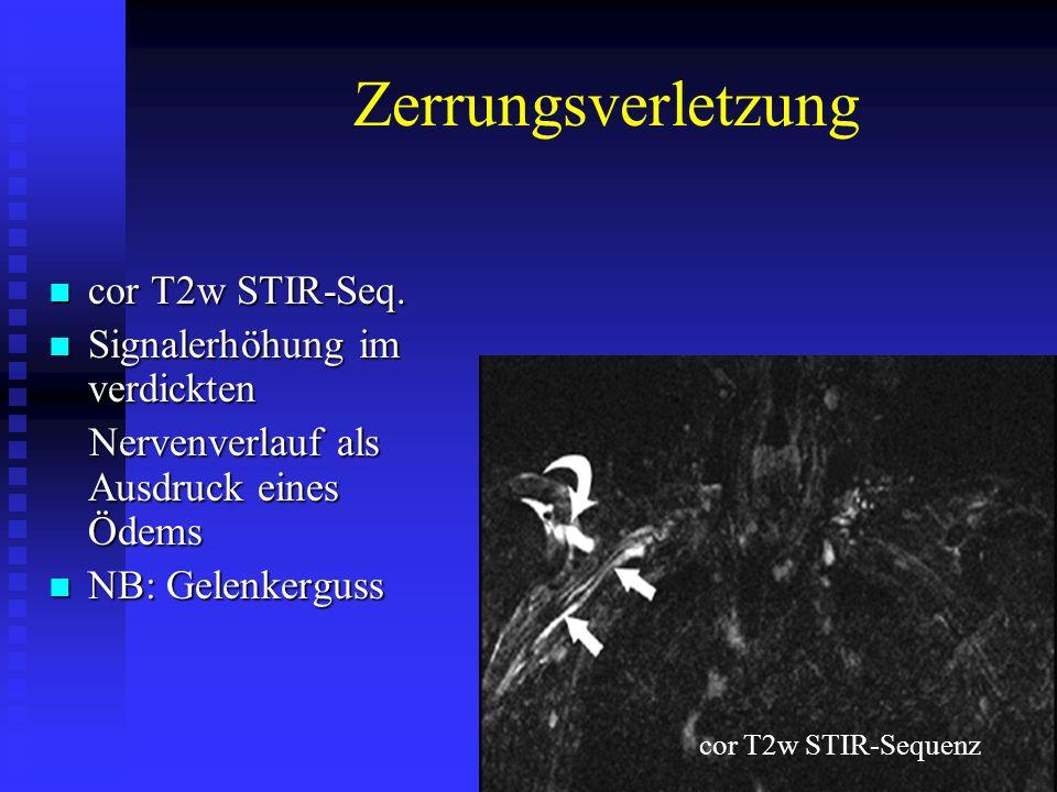 Zerrungsverletzung cor T2w STIR-Seq. cor T2w STIR-Seq. Signalerhöhung im verdickten Signalerhöhung im verdickten Nervenverlauf als Ausdruck eines Ödem