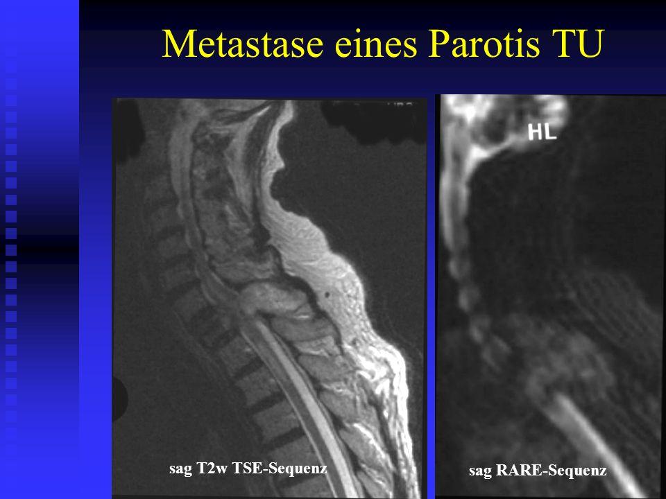 Metastase eines Parotis TU sag T2w TSE-Sequenz sag RARE-Sequenz