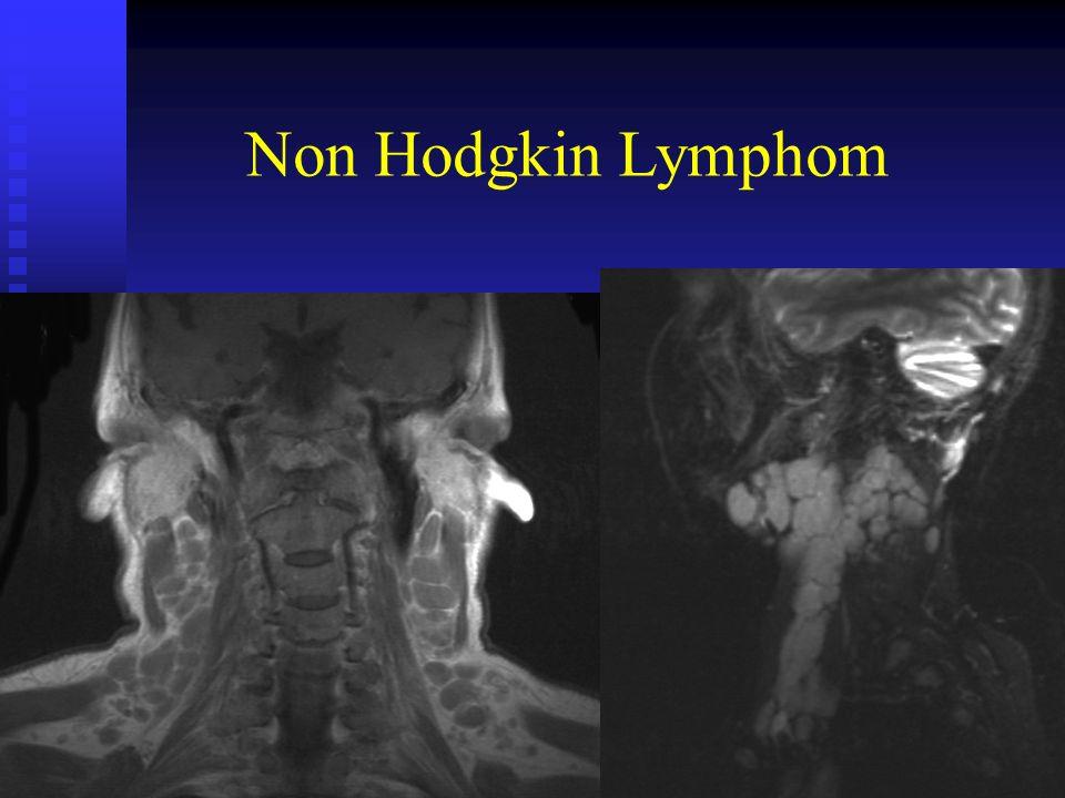Non Hodgkin Lymphom