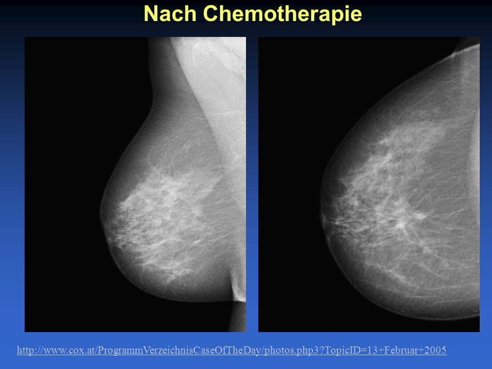 Nach Chemotherapie http://www.cox.at/ProgrammVerzeichnisCaseOfTheDay/photos.php3 TopicID=13+Februar+2005