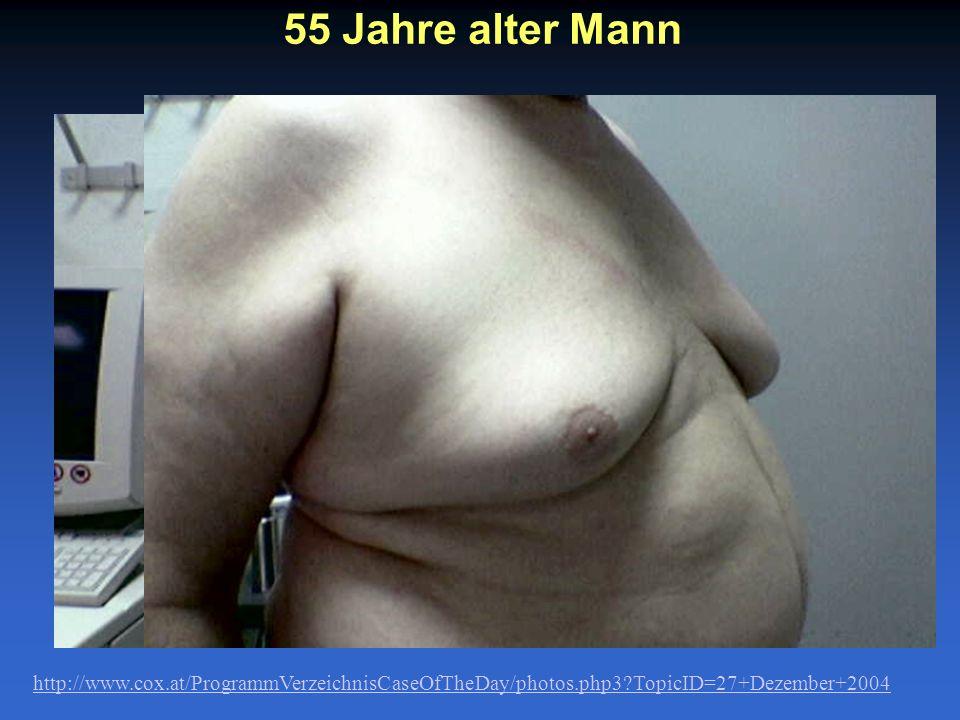 55 Jahre alter Mann http://www.cox.at/ProgrammVerzeichnisCaseOfTheDay/photos.php3?TopicID=27+Dezember+2004