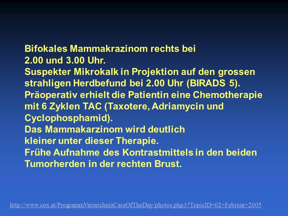 Bifokales Mammakrazinom rechts bei 2.00 und 3.00 Uhr. Suspekter Mikrokalk in Projektion auf den grossen strahligen Herdbefund bei 2.00 Uhr (BIRADS 5).