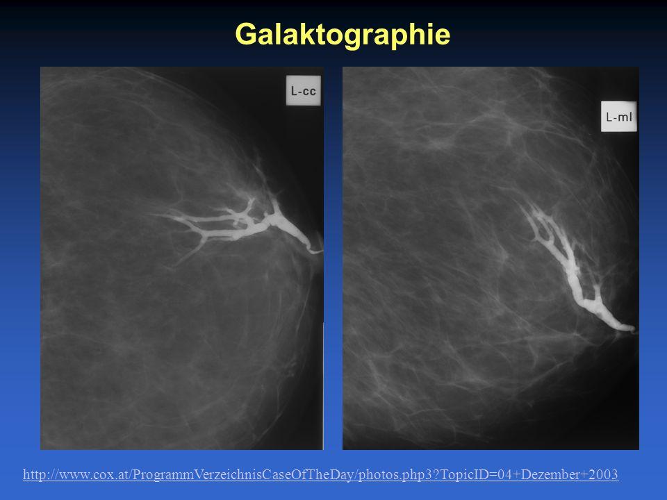 Galaktographie http://www.cox.at/ProgrammVerzeichnisCaseOfTheDay/photos.php3?TopicID=04+Dezember+2003