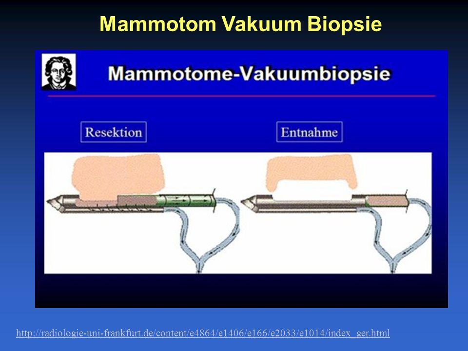 Mammotom Vakuum Biopsie http://radiologie-uni-frankfurt.de/content/e4864/e1406/e166/e2033/e1014/index_ger.html