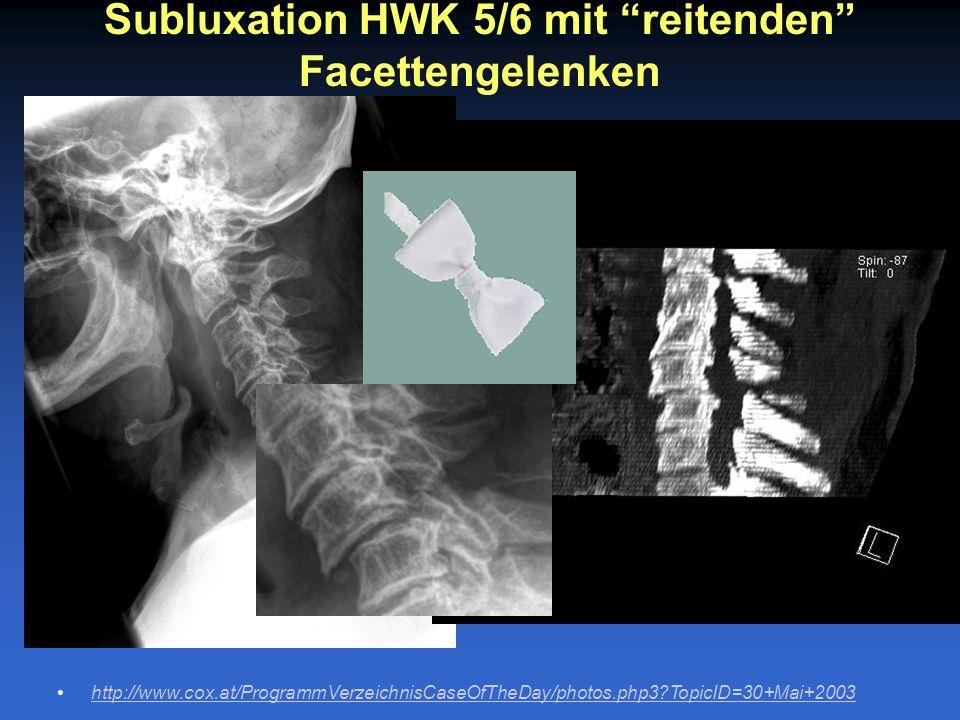 Subluxation HWK 5/6 mit reitenden Facettengelenken http://www.cox.at/ProgrammVerzeichnisCaseOfTheDay/photos.php3?TopicID=30+Mai+2003