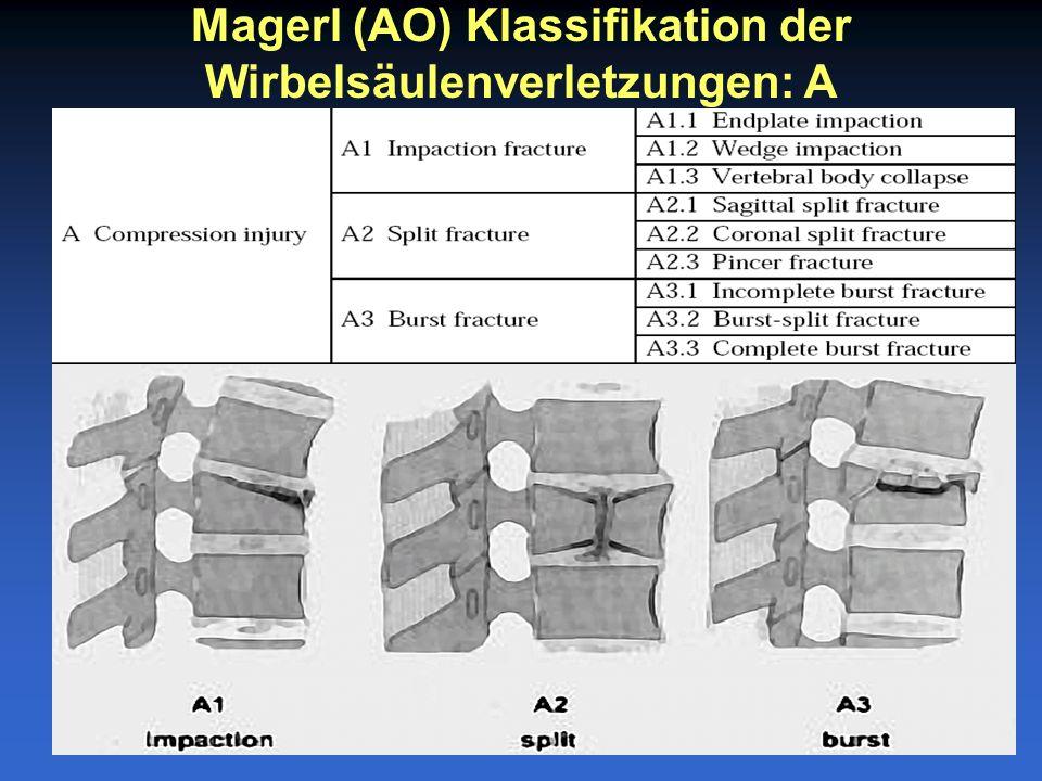 Magerl (AO) Klassifikation der Wirbelsäulenverletzungen: A