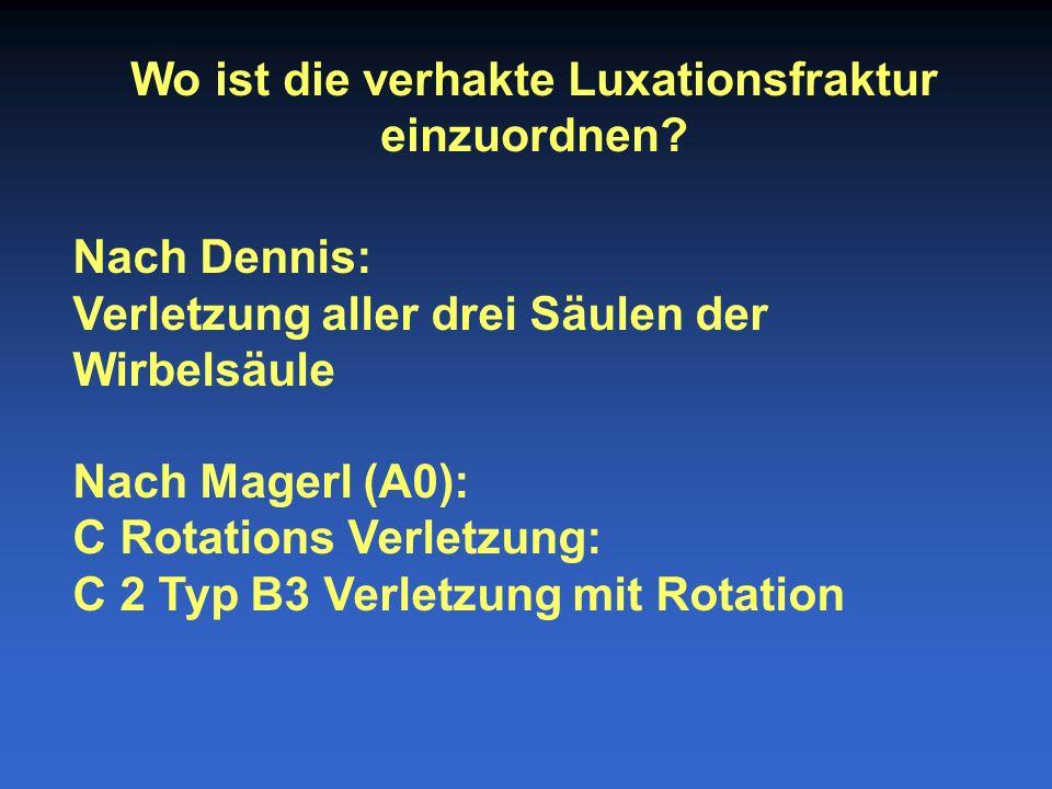 Wo ist die verhakte Luxationsfraktur einzuordnen? Nach Dennis: Verletzung aller drei Säulen der Wirbelsäule Nach Magerl (A0): C Rotations Verletzung: