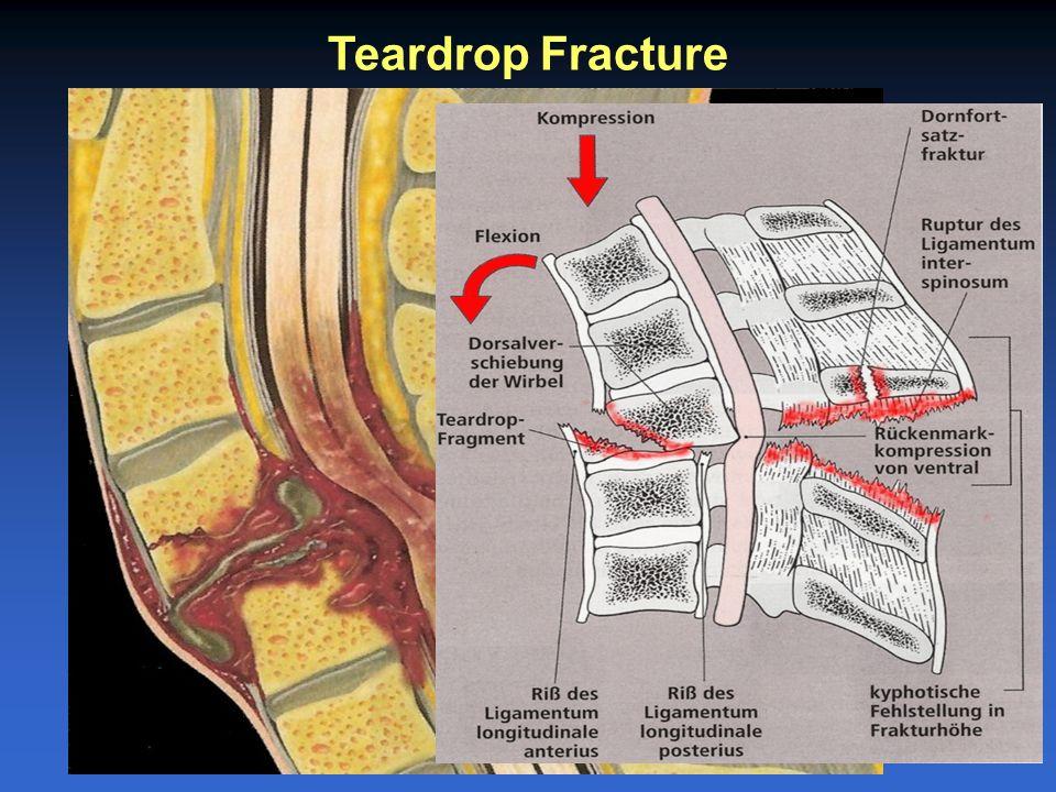 Teardrop Fracture