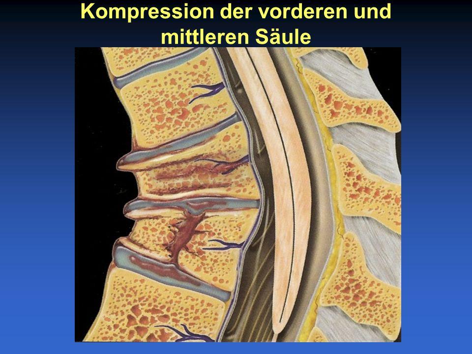 Kompression der vorderen und mittleren Säule