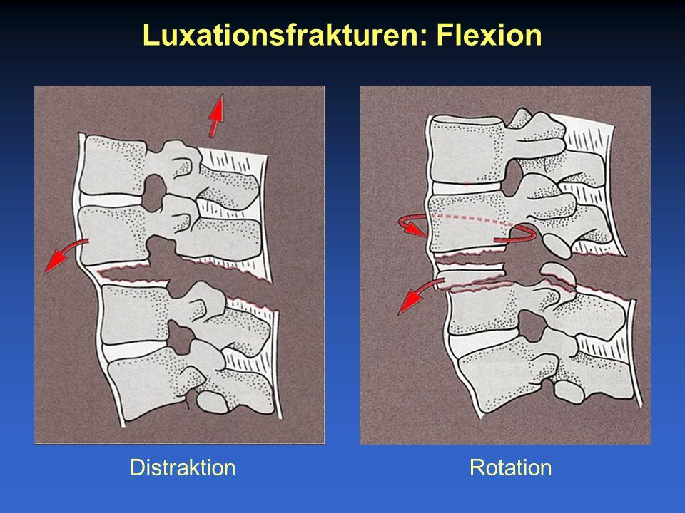 Luxationsfrakturen: Flexion DistraktionRotation