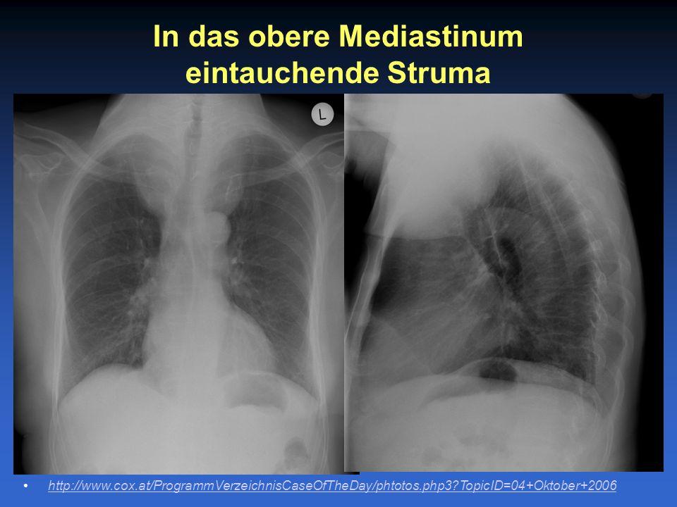 In das obere Mediastinum eintauchende Struma http://www.cox.at/ProgrammVerzeichnisCaseOfTheDay/phtotos.php3?TopicID=04+Oktober+2006