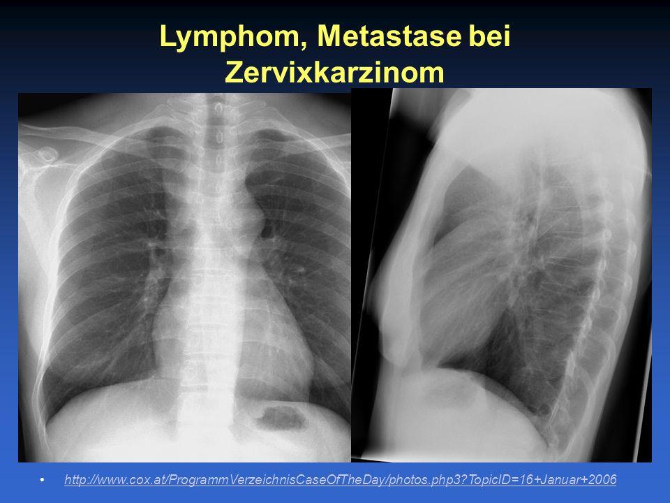 Lymphom, Metastase bei Zervixkarzinom http://www.cox.at/ProgrammVerzeichnisCaseOfTheDay/photos.php3?TopicID=16+Januar+2006