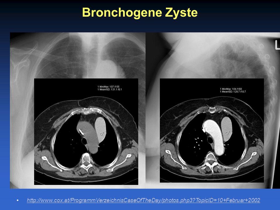 Bronchogene Zyste http://www.cox.at/ProgrammVerzeichnisCaseOfTheDay/photos.php3?TopicID=10+Februar+2002