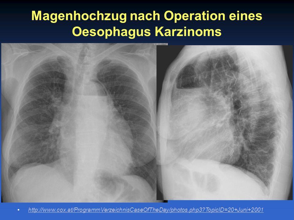 Magenhochzug nach Operation eines Oesophagus Karzinoms http://www.cox.at/ProgrammVerzeichnisCaseOfTheDay/photos.php3?TopicID=20+Juni+2001