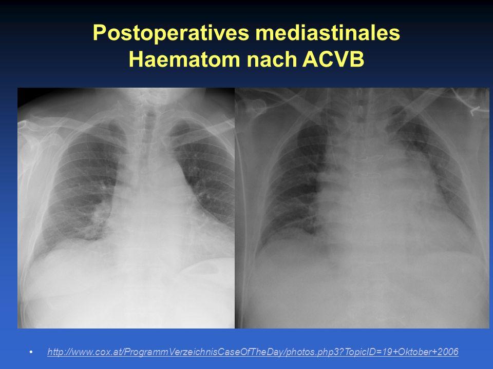Postoperatives mediastinales Haematom nach ACVB http://www.cox.at/ProgrammVerzeichnisCaseOfTheDay/photos.php3?TopicID=19+Oktober+2006