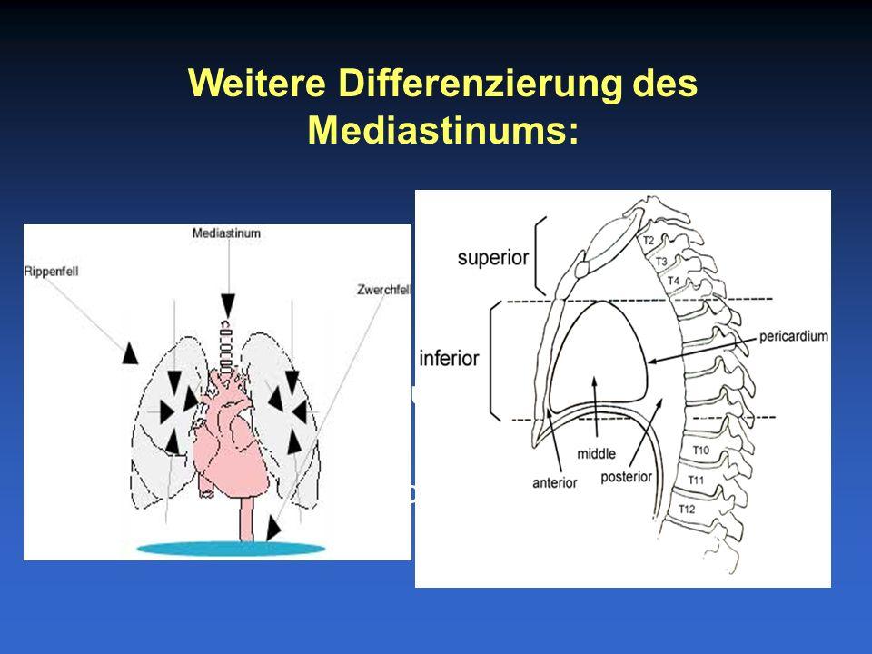 Weitere Differenzierung des Mediastinums: –Oberes Mediastinum: einschliesslich BWK4 –Unteres Mediastinum: –Vorderes: Sternum bis Herz –Mittleres: Herz