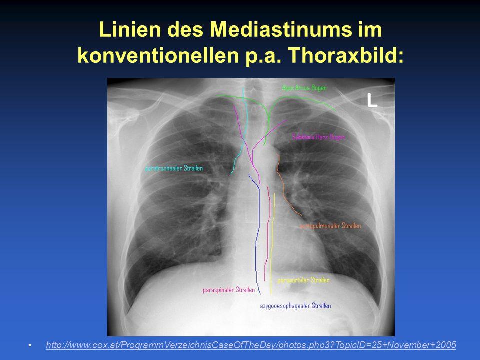 Linien des Mediastinums im konventionellen p.a. Thoraxbild: http://www.cox.at/ProgrammVerzeichnisCaseOfTheDay/photos.php3?TopicID=25+November+2005