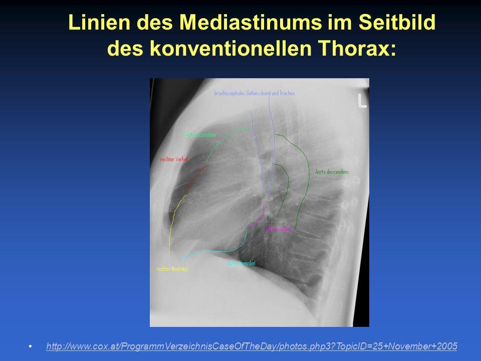 Linien des Mediastinums im Seitbild des konventionellen Thorax: http://www.cox.at/ProgrammVerzeichnisCaseOfTheDay/photos.php3?TopicID=25+November+2005