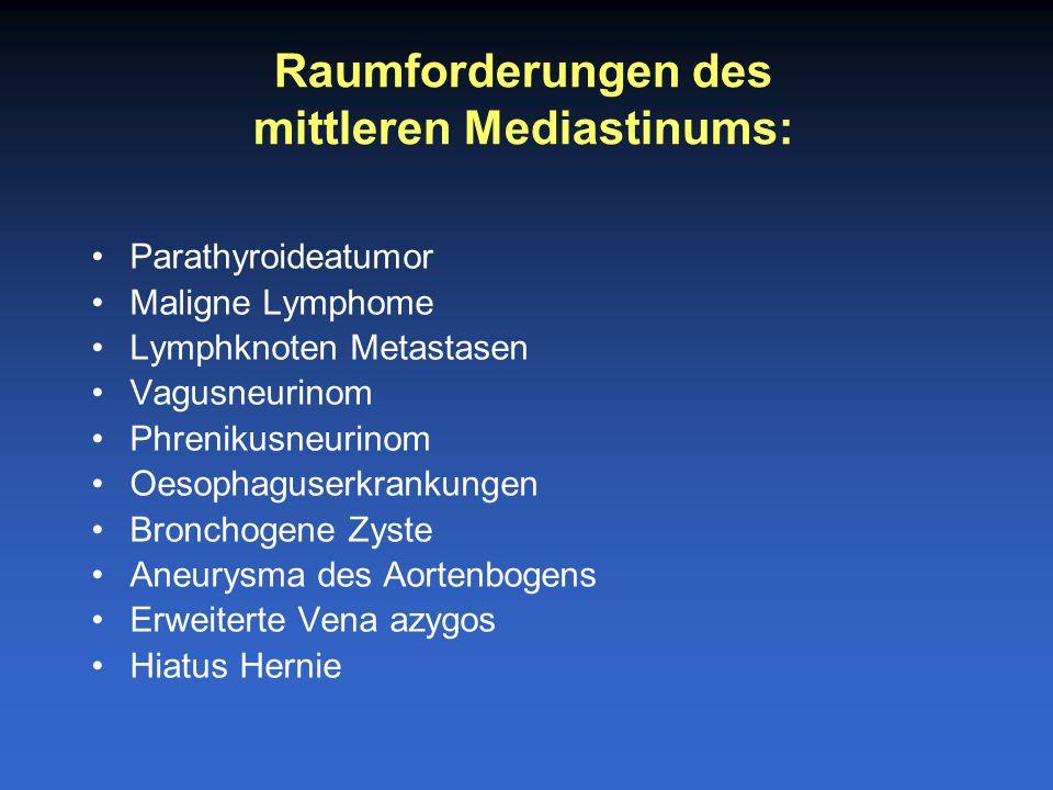 Neurofibrom Neurinom Phaeochromozytom Ganglioneurom Neuroblastom Oesophaguserkrankungen Extramedullaere Blutblidung Enterogene Zyste Ductus thoracicus Zyste Aneurysma der Aorta descendens Bochdalek-Hernie Raumforderungen des hinteren Mediastinums: