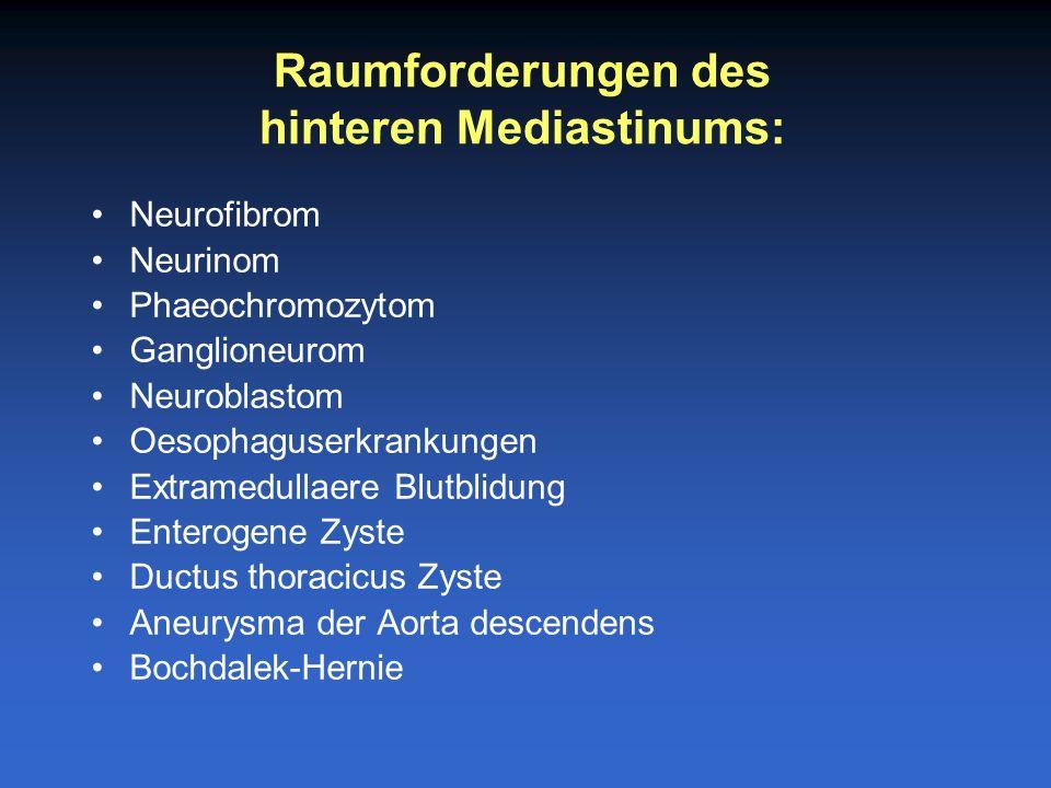 Mesenchymale Tumoren Abszess Fibrose Mediastinitis Raumforderungen, die in allen drei Kompartimente des Mediastinumss auftreten koennen: