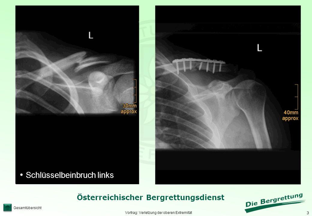 3 Österreichischer Bergrettungsdienst Gesamtübersicht Vortrag: Verletzung der oberen Extremität Schlüsselbeinbruch links