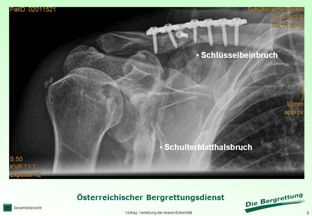 5 Österreichischer Bergrettungsdienst Gesamtübersicht Vortrag: Verletzung der oberen Extremität Schulterblatthalsbruch Schlüsselbeinbruch