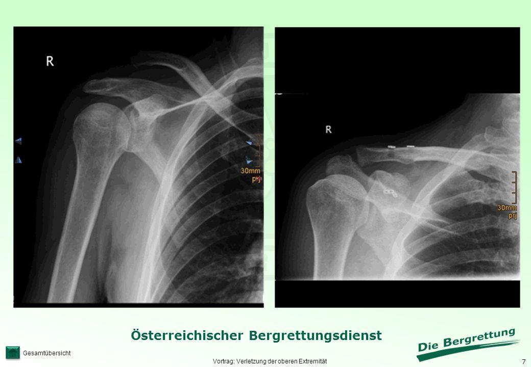 7 Österreichischer Bergrettungsdienst Gesamtübersicht Vortrag: Verletzung der oberen Extremität