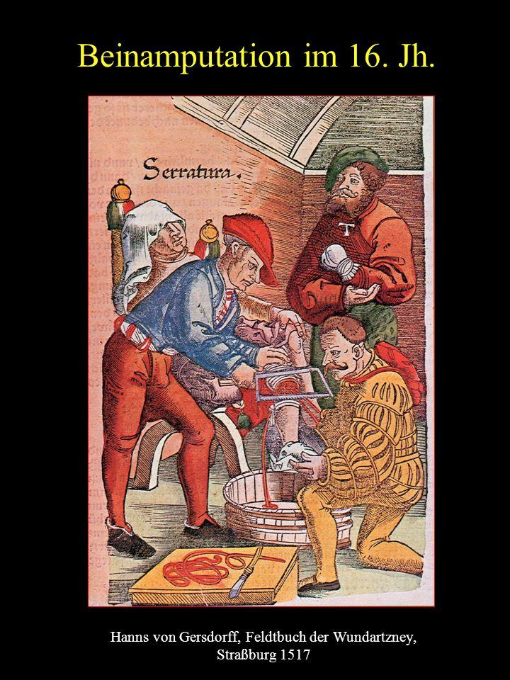 Beinamputation im 16. Jh. Hanns von Gersdorff, Feldtbuch der Wundartzney, Straßburg 1517